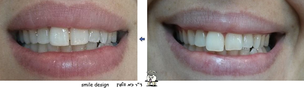 שינוי צורה של שיני ארנבת, גיא וולפין - אסתטיקה דנטלית