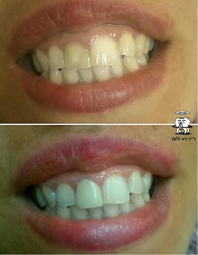 ציפוי קומפוזיט לשן שהשחירה אחרי טיפול שורש, גיא וולפין - אסתטיקה דנטלית